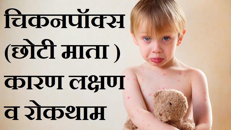 चिकनपॉक्स एवं स्मालपाक्स के कारण लक्षण व रोकथाम,chhoti mata kya hoti hai, Chickenpox Symtoms Effects Treatment In Hindi, nayichetana.com,chhoti mata ka ilaj
