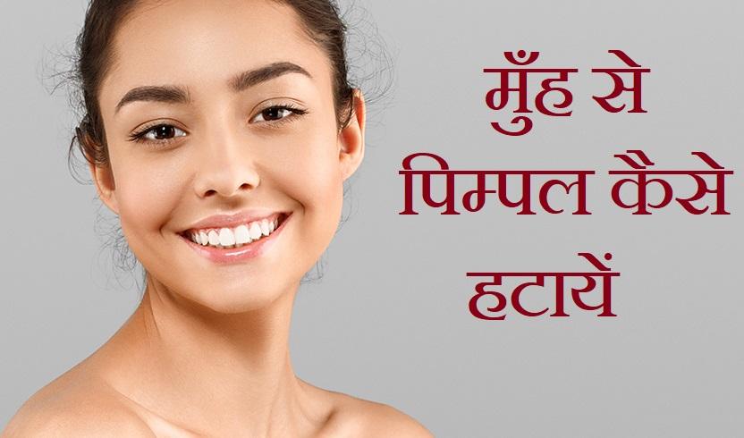 मुँह से पिम्पल कैसे हटायें, How To Remove Pimple Acne Couses In Hindi,Pimple kaise hataye,keel munhase kaise hataye,healthlekh.com