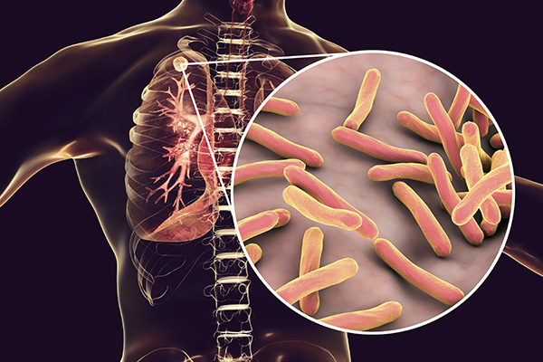 टी.बी. क्या है व इसे रोकने के तरीके,TB Tuberculosis Causes Symptoms Prevention In Hindi,TB KYA HAI,TB rokne ke tarike,healthlekh.com tb tips