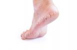 fati adiyo ka gharelu ilaaj,Cracked Heels Causes Treatment In Hindi