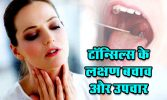Tonsillitis couses and treatment,Tonsillitis Symptoms Causes Treatment In Hindi
