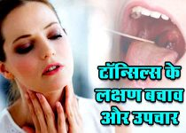 Tonsillitis couses and treatment