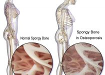 bones disease treatment in hindi