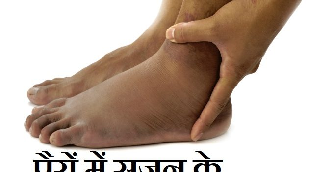 पैरों में सूजन के कारण व निवारण,Swelling in Feet Causes Treatment in Hindi,pairo me sujan ke kaaran upchar,legs swelling problems in hindi