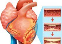 हार्ट में ब्लॉकेज के लक्षण कारण और घरेलू इलाज, Heart blockage symptoms Home Remedies in Hindi,Heart me blockage ke lakshan kaaran aur upchar