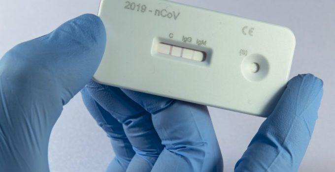 एंटीबॉडी टेस्ट किसे कहते हैं,COVID-19 antibody Test in Hindi,antibody Test kya hota hai,antibodyTest ke bare me,what is antibody Test inhindi