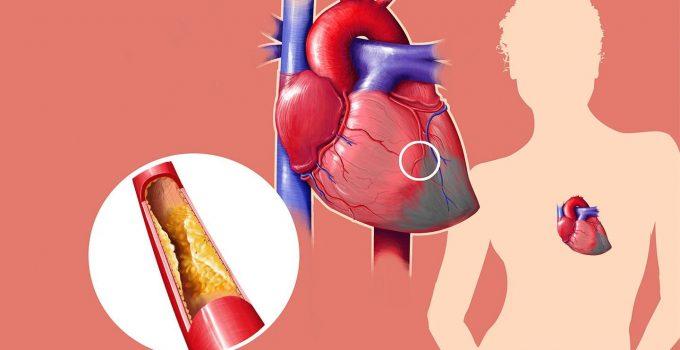 कोलेस्टेराल कम कैसे करे 12 उपाय,How to Reduce Cholesterol in Hindi,Cholesterol kam kaise kare,Cholesterol kam karne ke tarike,kolestrol upay