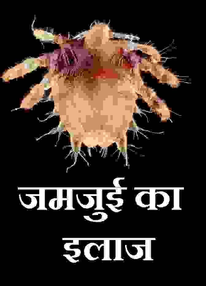 जमजुई का इलाज, Jamjui ka ilaj,pubic louse treatment in hindi,Pubic crab lice Treatment in hindi,jamjui ka treatment,jamjui bimari kya hai