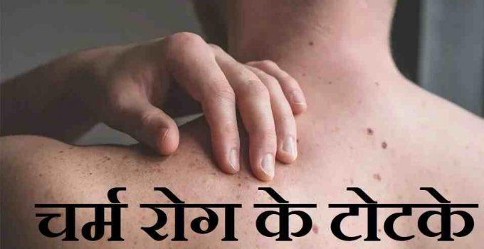 चर्म रोग के टोटके, skin diseases tricks in hindi,पतंजलि चर्म रोग मेडिसिन,चर्म रोग में परहेज,charm rog kya hai,skin problems solution in hindi