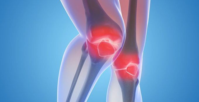 आर्थराइटिस के प्रकार कारण एवं उपचार, Arthritis Symptoms causes Treatment in Hindi,Arthritis kya hai, Arthritis ke kaaran aur lakshan upay